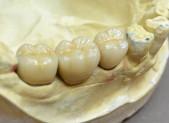 Corona cerámica | que&xal | Protésicos dentales en Valencia