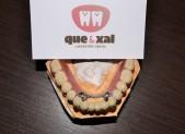 Esquelético | que&xal | Protésicos dentales en Valencia
