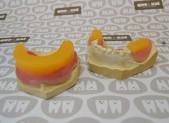 Planchas de resina | que&xal | Protésicos dentales en Valencia