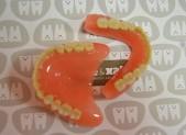 Prótesis removible completa | que&xal | Protésicos dentales en Valencia