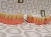 Prótesis removible parcial | que&xal | Protésicos dentales en Valencia