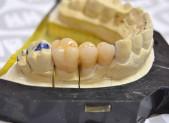 Zirconio | que&xal | Protésicos dentales en Valencia